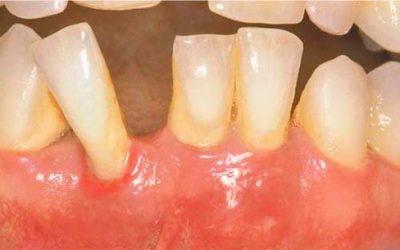 Подвижность зуба