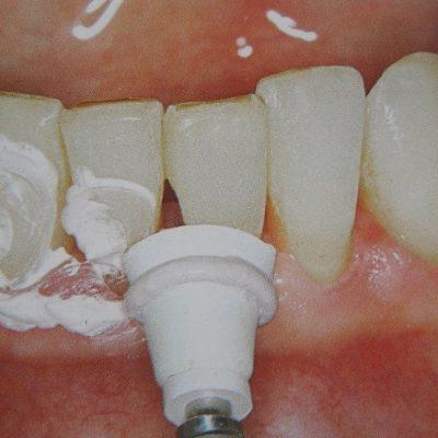 Полировка эмали зубов особыми пастами