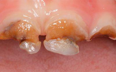 Разрушение зубов кариесом